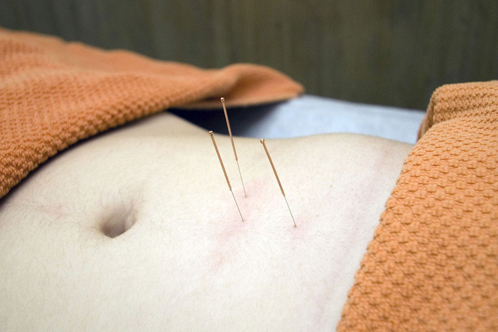 Best Acupuncture Treatment in Frisco TX